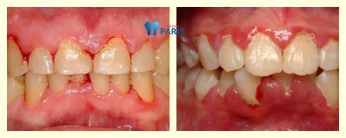Đánh răng chảy máu: Nguyên nhân và cách điều trị hiệu quả 2