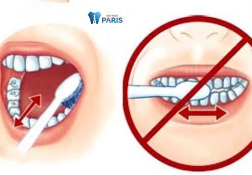 Có nên đánh răng sau khi ăn không? 3