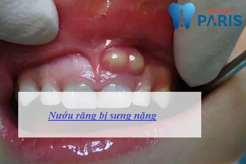 Nướu răng bị sưng có mủ - Nguyên nhân & Cách chữa trị TRIỆT ĐỂ 1