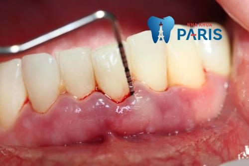 Cách chữa viêm lợi chân răng