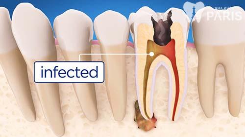 Top 4 cách khắc phục răng đau và lung lay bạn cần biết 3