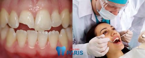 Top 4 cách khắc phục răng đau và lung lay bạn cần biết 5