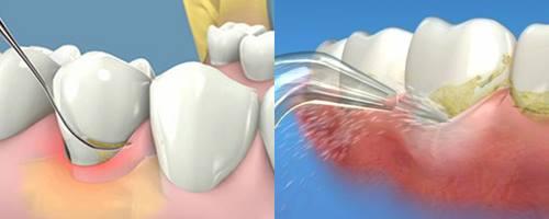 răng lung lay 4