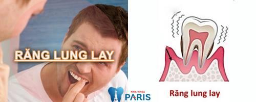 [Hình: rang-lung-lay-uong-thuoc-gi1.jpg]