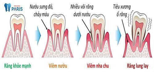 Chia sẻ răng lung lay uống thuốc gì để mang lại hiệu quả? 3