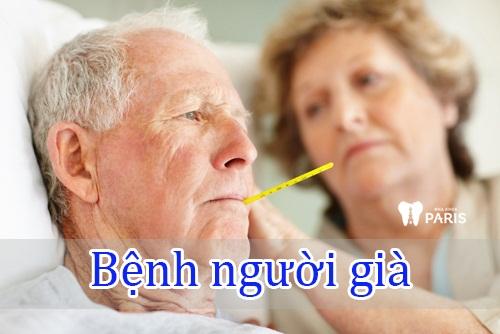 Miệng khô và đắng -Tổng hợp đầy đủ các nguyên nhân gây nên 6