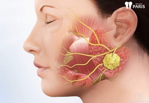 Miệng khô và đắng -Tổng hợp đầy đủ các nguyên nhân gây nên 4