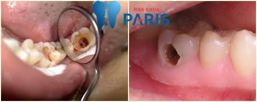 Đau nhức răng hàm: Nguyên nhân và Cách điều trị TẬN GỐC 2