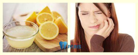 """15 cách chữa sâu răng """"Tại Nhà"""" điều trị HIỆU QUẢ chỉ sau 3 phút 3"""