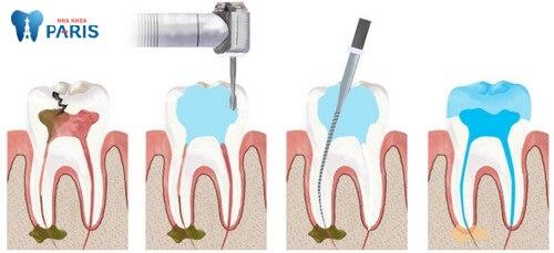 Giải đáp: Chữa tủy răng bao nhiêu tiền? [Bảng giá chi tiết 2018] 1