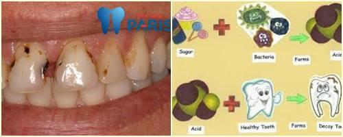Răng cửa bị sâu - Nguyên nhân & Cách khắc phục DỨT ĐIỂM 1