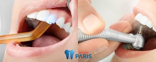 Răng cửa bị sâu - Nguyên nhân & Cách khắc phục DỨT ĐIỂM 2