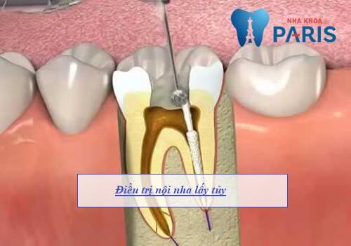 Răng sâu vào tủy có nguy hiểm không & Cách nào điều trị dứt điểm? 3