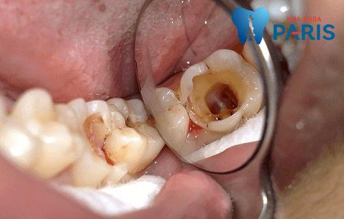 Răng hàm bị sâu có nên nhổ đi không? [Chuyên gia tư vấn] 1