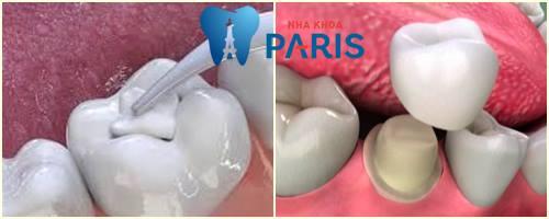 Sâu răng làm sao hết đau nhanh và không tái phát? [BS Tư Vấn] 4