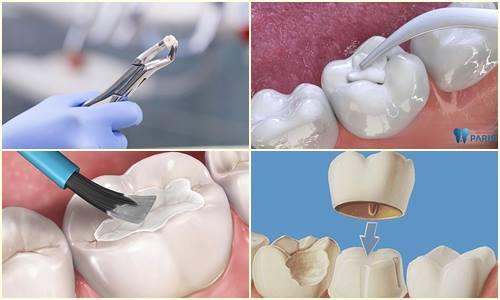 Sâu răng để lâu có nguy hiểm không? [Giải đáp từ chuyên gia] 4
