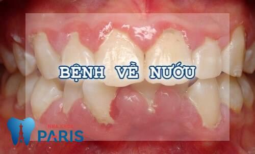 Đau răng khi nhai thức ăn – Nguyên nhân & cách khắc phục dứt điểm 2