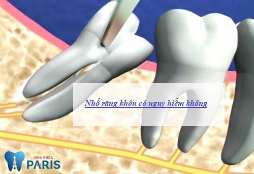 Nhổ răng khôn có NGUY HIÊM & BIẾN CHỨNG gì hay không? 1
