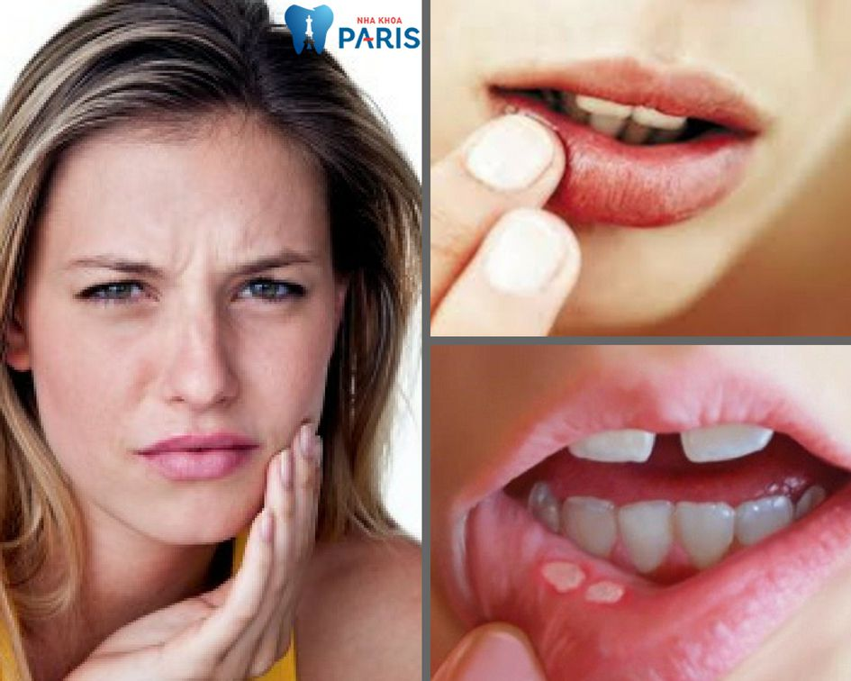 """Cách chữa đau răng nhiệt miệng """"Tại Nhà"""" AN TOÀN & HIỆU QUẢ 1"""