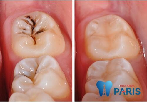 Đau chân răng số 7 phải làm thế nào để khắc phục 2