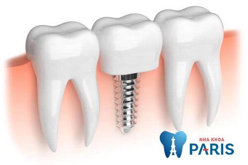 Đau chân răng số 7 phải làm thế nào để khắc phục 3