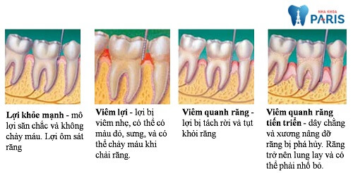Nhận biết bệnh viêm quanh chân răng và cách điều trị 2