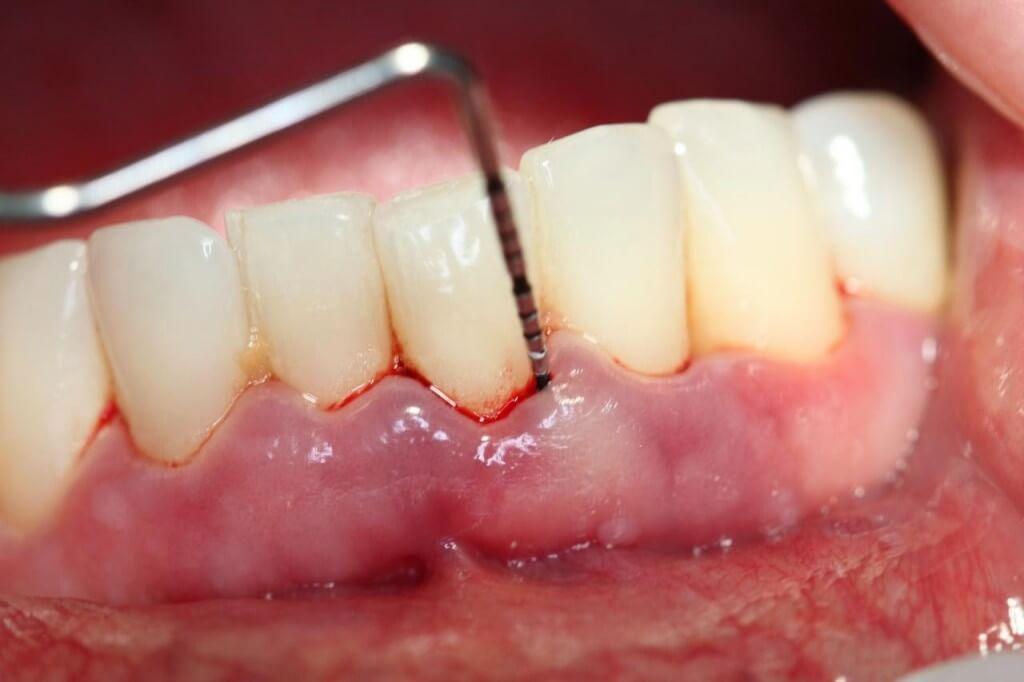 cách chữa viêm lợi chảy máu chân răng 2
