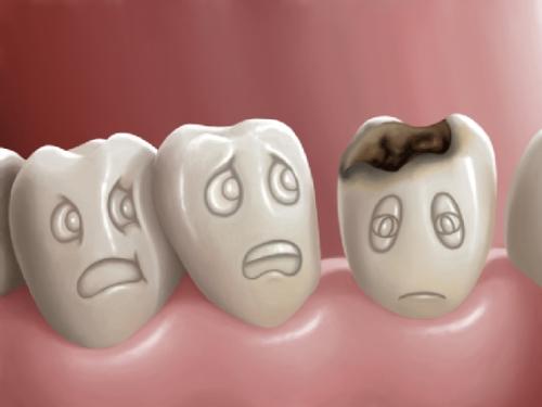 Cách chữa đau răng tạm thời hiệu quả