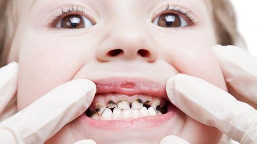 Bí quyết chữa đau răng cho trẻ em hiệu quả