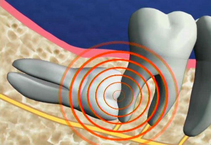 Cách điều trị các biến chứng NGUY HIÊM khi răng khôn mọc ngang 1