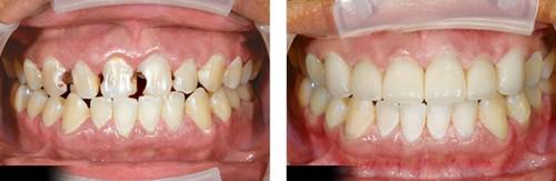 Liệu pháp điều trị răng cửa bị sâu