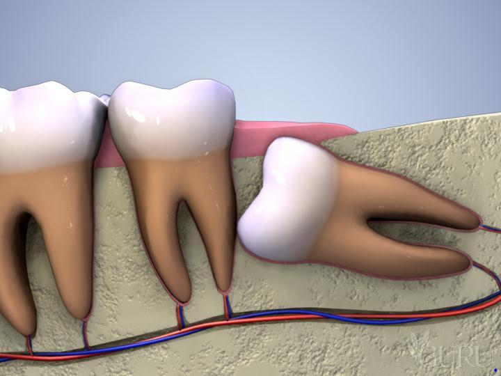 Những nguy hại của răng khôn mọc lệch