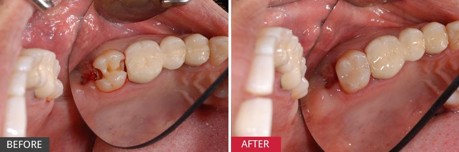 Phương pháp điều trị sâu răng khi đang mang thai