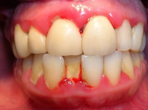 viêm quanh cuống răng