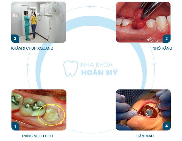 Mọc răng khôn hàm trên bị sốt phải làm sao?2