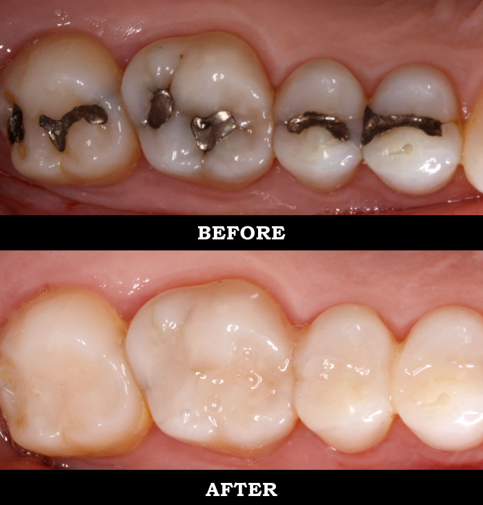 Nhức răng sau khi trám - nguyên nhân do đâu? 2