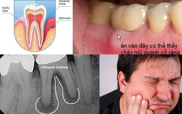Triệu chứng chân răng mà bạn không nên xem thường