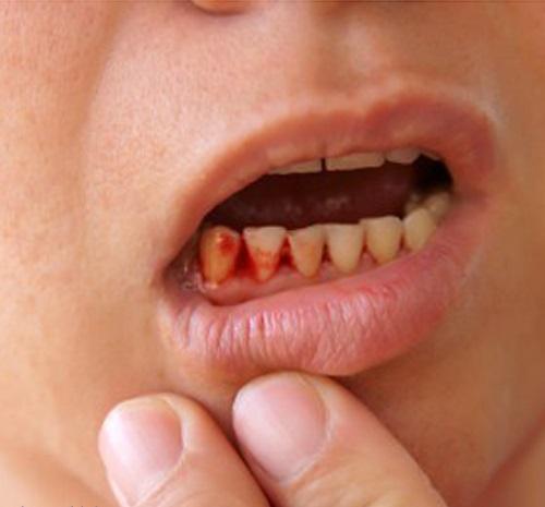 Cách chữa trị nướu răng bị chảy máu