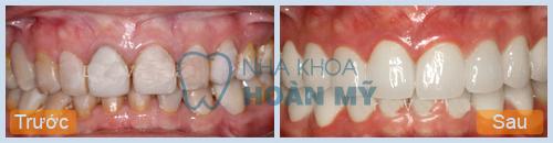 Bị mẻ răng cửa phải khắc phục như thế nào