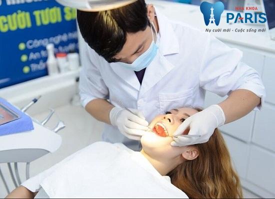 """Cách chữa răng bị tụt lợi """"Tại Nhà"""" Điều trị AN TOÀN & HIỆU QUẢ nhất 5"""