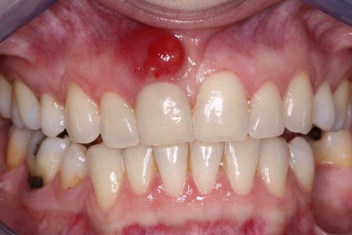 Một số mẹo chữa viêm chân răng cấp tốc tại nhà 1