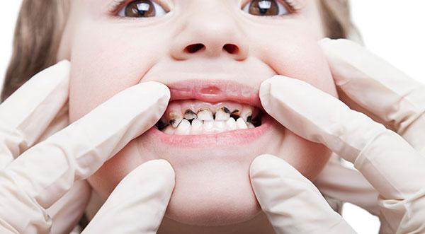 Chuyên gia trả lời: Viêm tủy răng là gì? Điều trị viêm tủy thế nào? 2