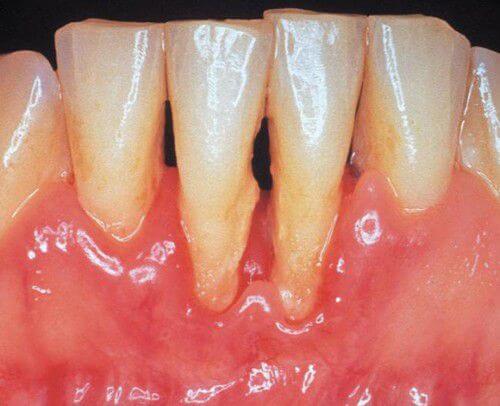 """Viêm loét chân răng: Nguyên nhân & Cách chữa """"AN TOÀN"""" Hiệu Quả 1"""