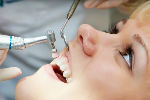 Cách chữa viêm nướu chân răng nhanh chóng và triệt để nhất 2