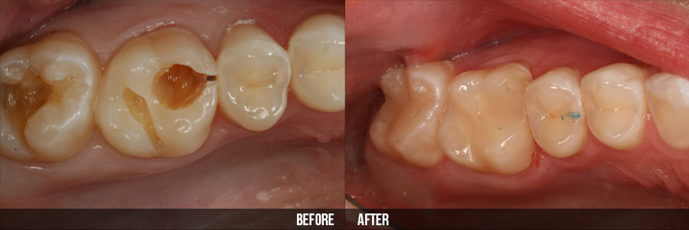 Cách điều trị bệnh sâu răng ở người lớn
