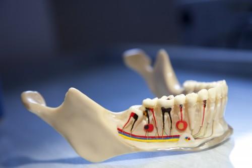 Thông tin về viêm chóp răng và cách chữa trị triệt để nhất 1