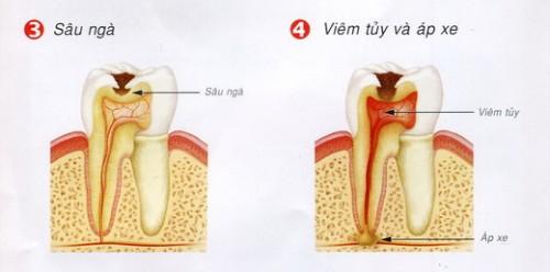 Thông tin về viêm chóp răng và cách chữa trị triệt để nhất 2