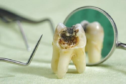 Chữa tủy răng có đau Không? Lấy tủy răng như thế nào để không Đau? 1