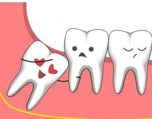 Tuổi mọc răng khôn là khi nào? 3 Lưu ý về các biến chứng NGUY HIỂM 2