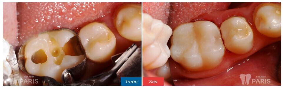 Chi phí chữa tủy răng bao nhiêu tiền? [Bảng giá CHUẨN nhất 2018] 2